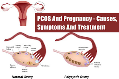 Sindrom ovarium polikistik (PCOS)