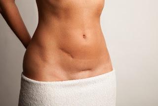 Comment atténuer les cicatrices de votre peau naturellement