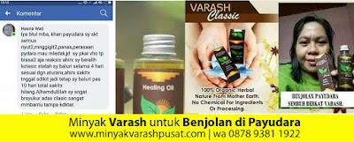 Testimoni minyak varash untuk benjolan di payudara