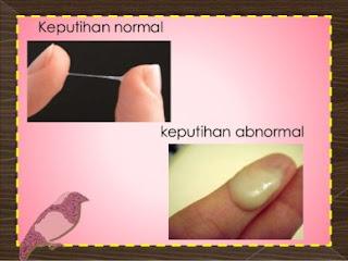obat keputihan abnormal paling ampuh di apotik