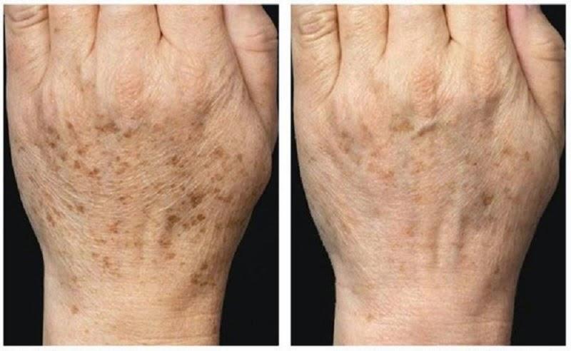 Проблема с кожей при диабете