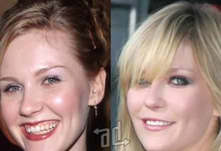 cirugia de dientes Kirsten Dunst