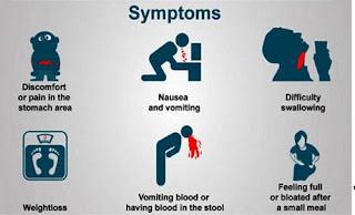 Symptoms of stomach cancer photos