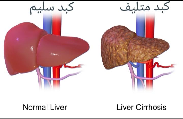 فيروس سي او التهاب الكبد الوبائي ج او بالانجليزية Hepatitis C