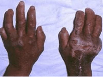 Gambar Penyebab Kusta Dan Cara Mengobati Penyakit Kusta