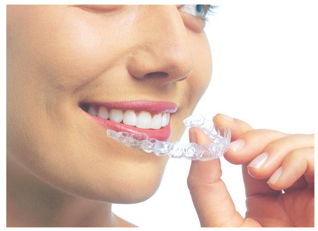 Orthodontic treatment without braces image