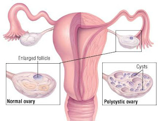 pcos syndrome,how cure polycystic ovary,symptoms of PolyCystic Ovary