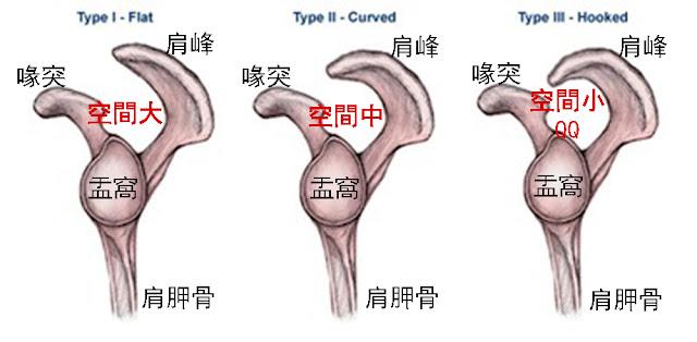 肩夾擠症候群 原發性