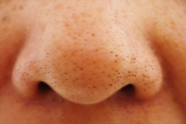 tips komedo, penyebab komedo, masalah komedo, komedo di hidung, komedo di wajah, cara mengobati komedo