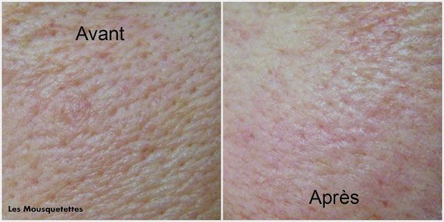 DIY peeling visage sucré ou salé - Les Mousquetettes©