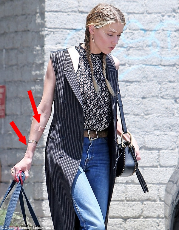 Amber Heard with slices on her arm