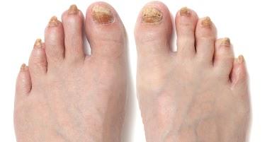 Si los pies se descaman las uñas el hongo
