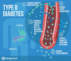 Type 2 Diabetes - Preventing Full-Blown Diabetes in Women Following Pregnancy