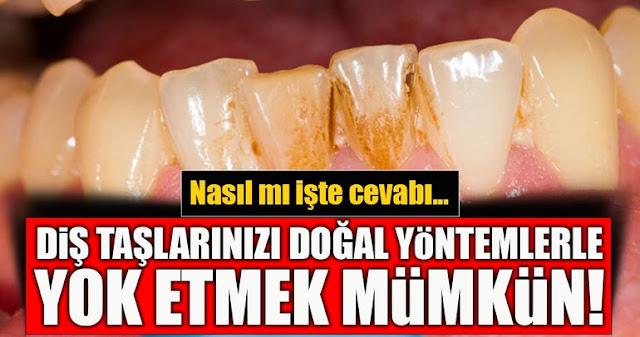 Diş Taşları Doğal Yollarla Nasıl Temizlenir