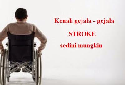 ciri gejala stroke