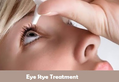Eye Stye Treatment