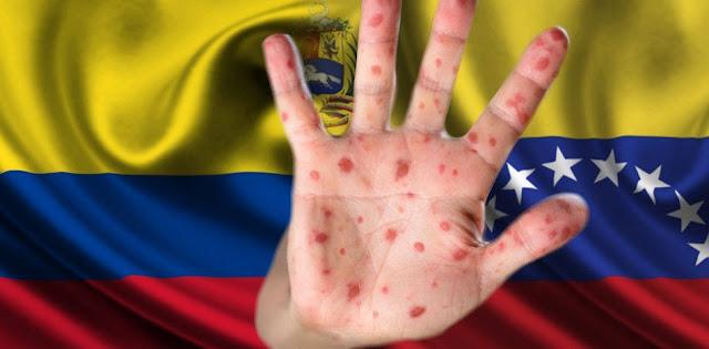 Colombia: escudo epidemiológico ante llegada de sarampión desde Venezuela
