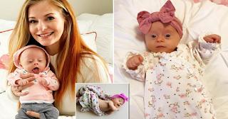 Στενοχωρήθηκε όταν έμαθε ότι περιμένει μωρό με σύνδρομο Down. Σήμερα δε ζει στιγμή χώρια της