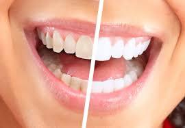 4 خلطات منزلية تمنحك أسنانا بيضاء كالثلج