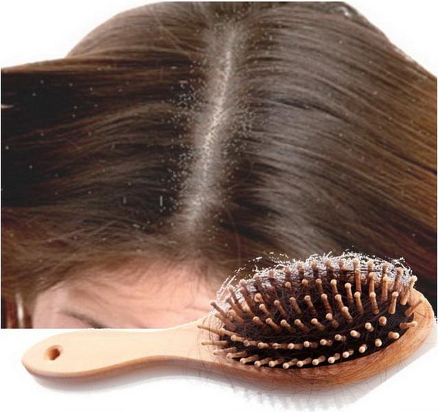 perawatan-rambut-rontok-akibat-ketombe