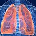 Novo medicamento para câncer de pulmão ajuda a reduzir progressão da doença