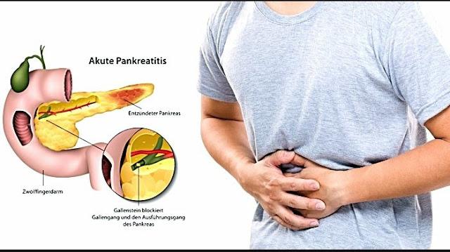 Sakit Perut Sebelah Kiri, Ini Sumber 5 Penyakit Berbahaya