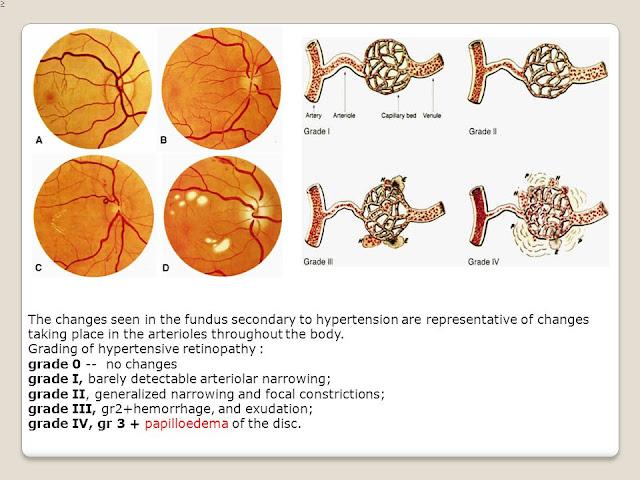 HTN retinopathy grading