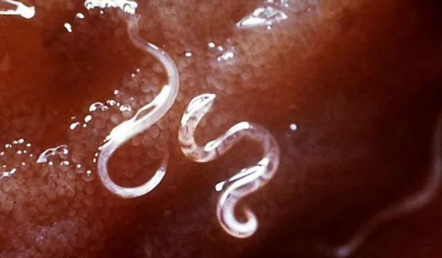10 Symptoms That You Have Parasites In Your Body