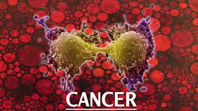 penyakit kanker dan pengobatan