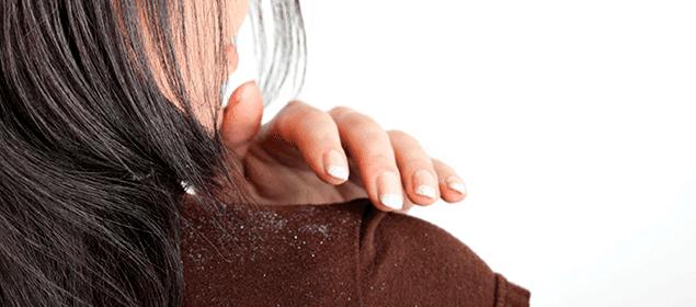 remedios contra la caspa