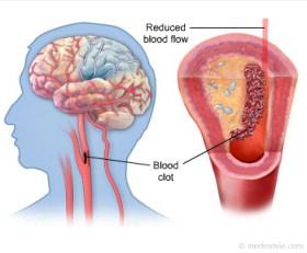Obat herbal untuk stroke yang ringan, Obat herbal untuk stroke, Obat herbal stroke
