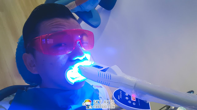 After some teeth whitening agent applied on my teeth, there are three sessions of whitening light treatment (total 45 minutes)