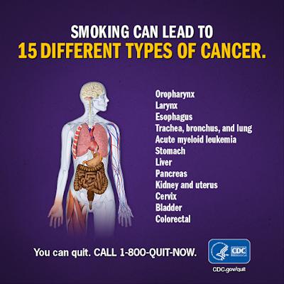 τσιγάρο...ΞΕΣΤΡΑΒΩΣΟΥ Cancer