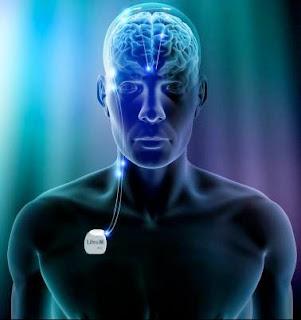 ¿Qué es un Neuroestimulador?