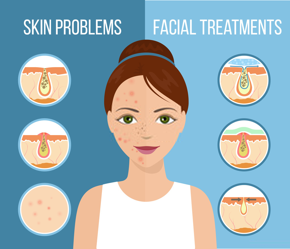 How To Get Rid Of Acne For Good