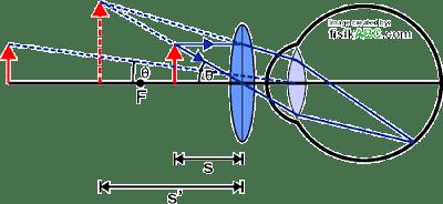 diagram proses pembentukan bayangan pada lup (kaca pembesar) untuk mata berakomodasi maksimum