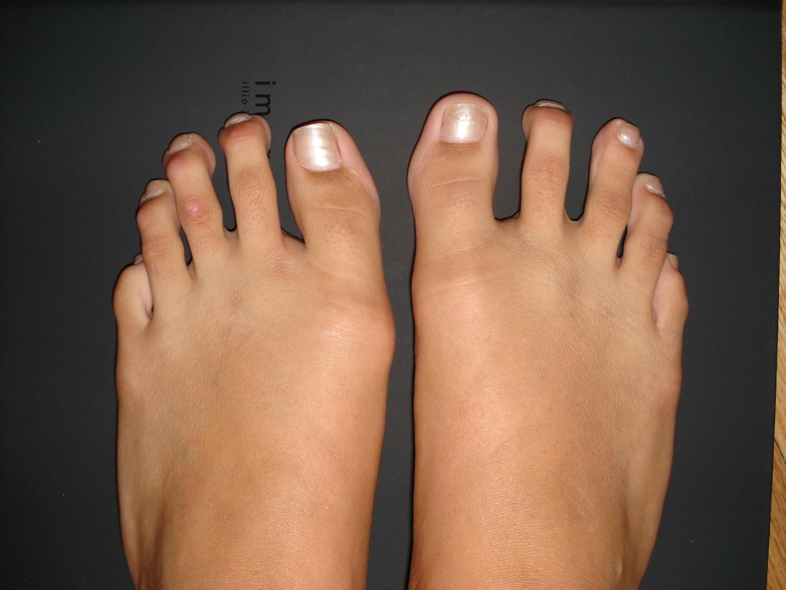 Surgery Heels Shortening Toe After