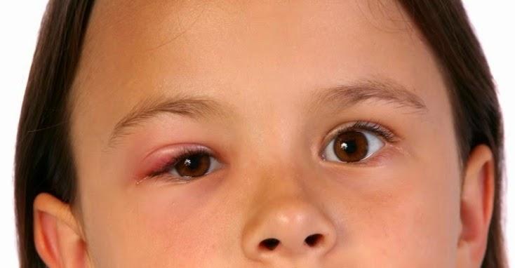 Cara Mengobati Mata Bintitan Tanpa Efek Samping