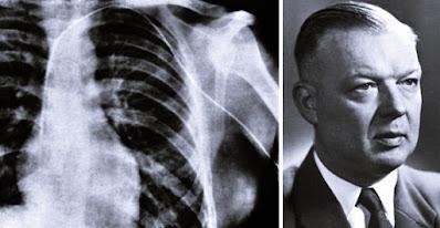 Werner Theodor - cateterismo cardíaco