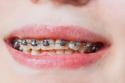 Can Braces Damage Gums, Teeth, or Roots?
