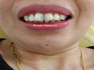 veneer gigi hitam bali | veneer gigi hitam denpasar| veneer gigi hitam nusadua| veneer gigi hitam badung| veneer gigi hitam gatsu | veneer gigi hitam kute | veneer gigi hitam  jimbaran | veneer gigi hitam bagus | veneer gigi hitam baik | veneer gigi hitam cepat | veneer gigi hitam murah | veneer gigi hitam aman | veneer gigi hitam mudah | veneer gigi hitam promo | gambar veneer gigi hitam | gambar sebelum dan sesudah veneer gigi hitam dan berlubang | veneer gigi geraham | veneer gigi depan | veneer gigi hitam ahligigi