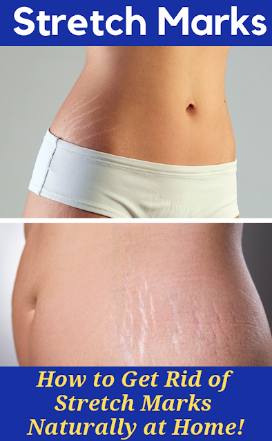 Get Rid of Stretch Marks Naturally at Home