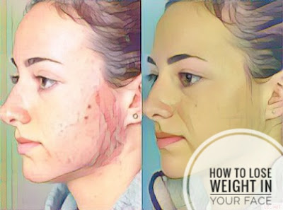 How to lose weight in the face.