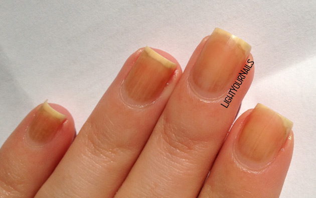 Stained nails after Colors by Llarowe Mocha Grande removal