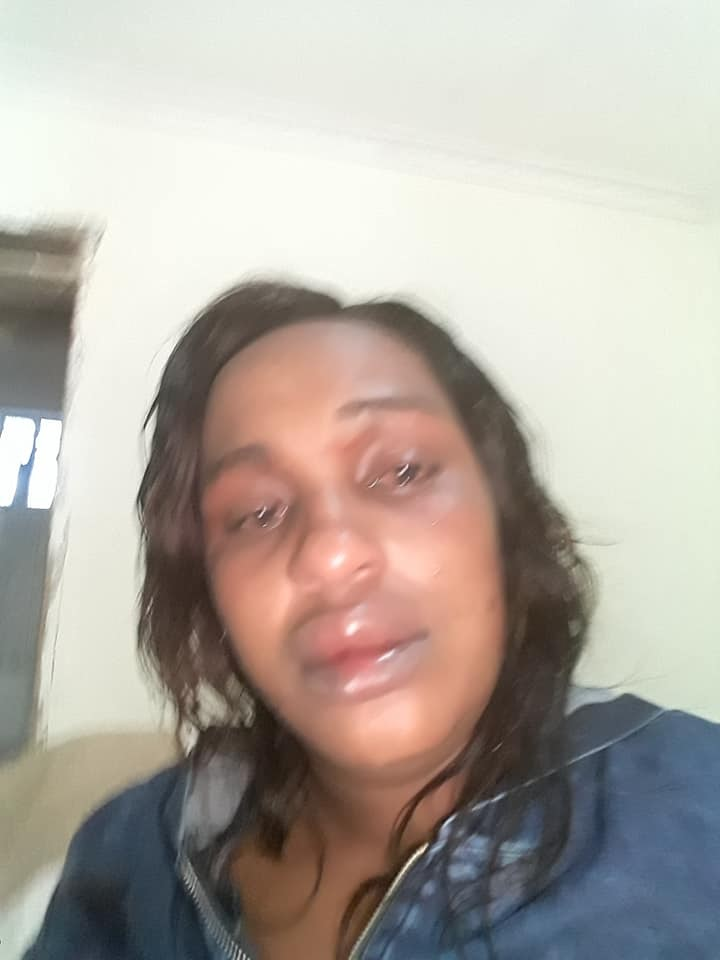 run%2B3 - SHOCK as Kikuyu LADY posts suicide note on facebook and shares the injuries her abusive husband inflicted on her(PHOTOs)