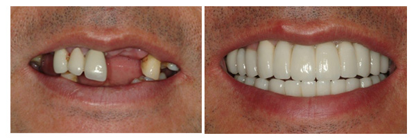 case of full mouth rehabilitation before after photos