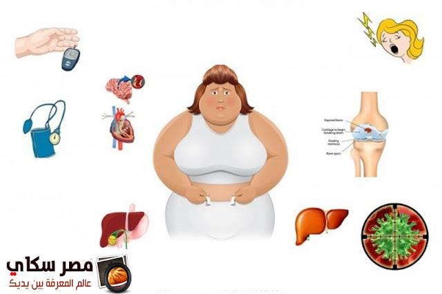 7 أمراض يسببها الوزن الزائد فى جسم الإنسان  Excess weight