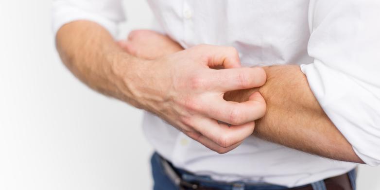 Nama Obat Alergi Gatal Di Apotik Kimia Farma Resep Dokter Yang Paten
