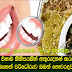 Here are missing a few minutes the toothache   You fail to know the recipe of natural medicine