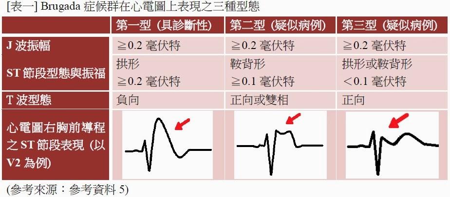 First-degree atrioventricular block on basal ...
